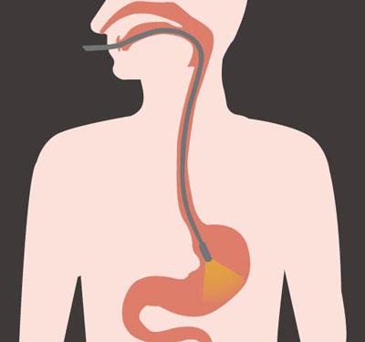 gastroenterologia indolore